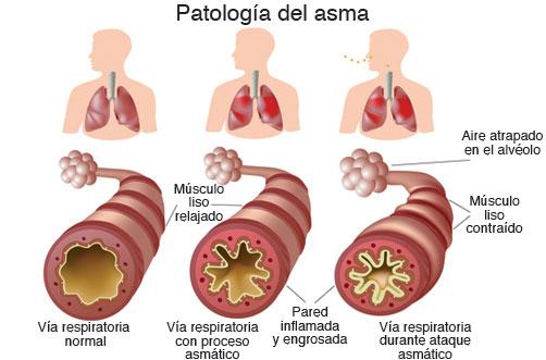 Patología del asma