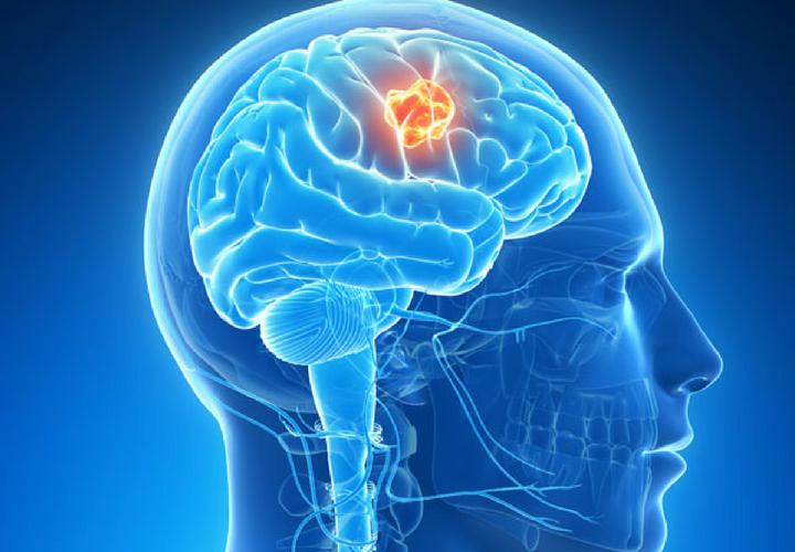Test para saber si tienes un tumor cerebral