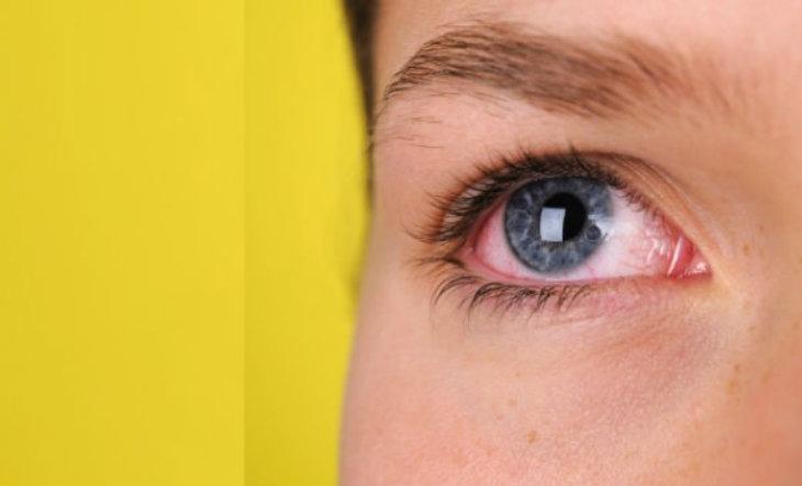Alergia en los ojos remedios naturales