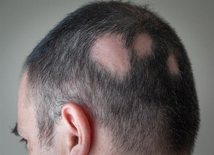 Alopecia. / Infosalus.