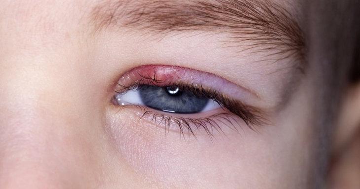 remedio casero para quitar las perrillas delos ojos