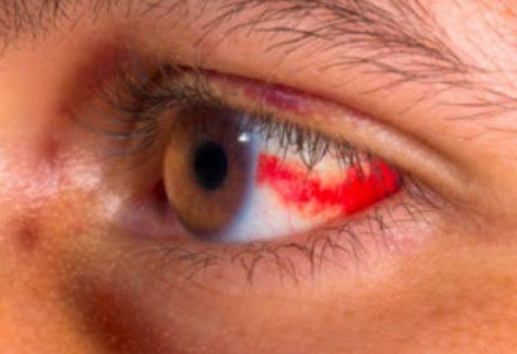 que significa mancha roja en el ojo