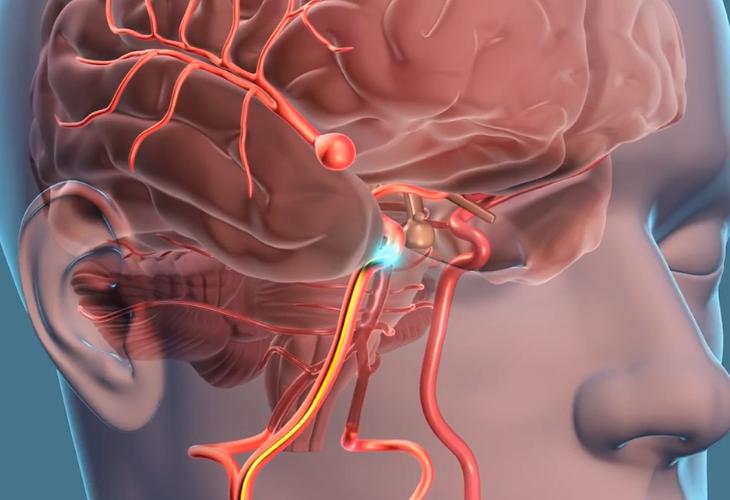 sintomas de derrame cerebral y causas