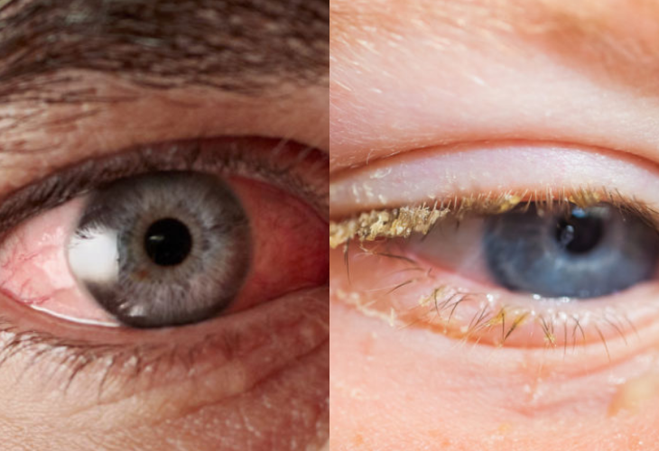 infección de polen ojos