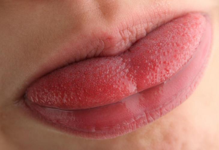infección viral causa protuberancias en la piel