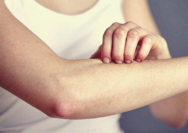 sintomas de colesterol alto en mujeres